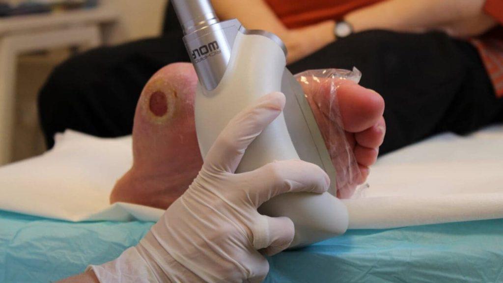 Lökéshullám-terápia: egy új és hatékony lehetőség a cukorbeteg láb kezelésében
