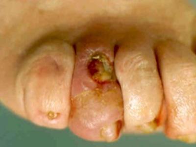 Cukorbeteg láb